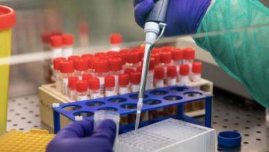 Photo of BREAKING NEWS: Ghana Records Two Coronavirus Cases – Health Minister
